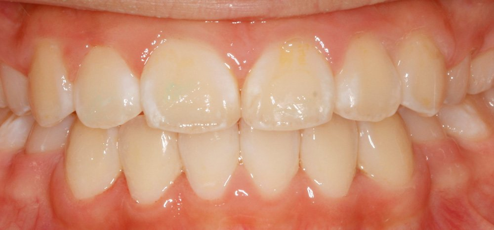 After Orthodontic Treatment Braces