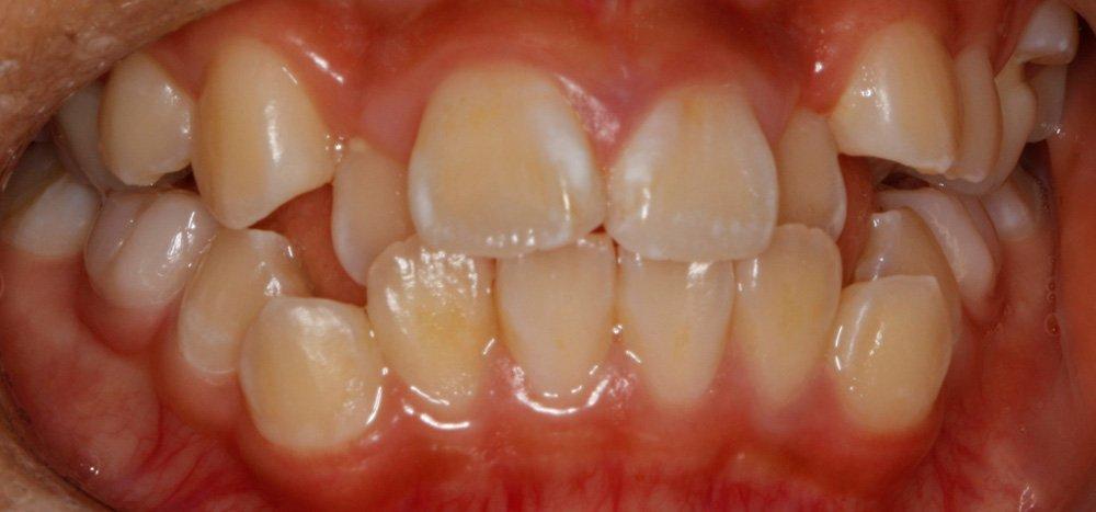 Before Orthodontic Treatment Braces