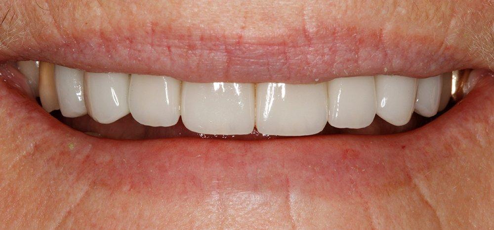 Smile Design After