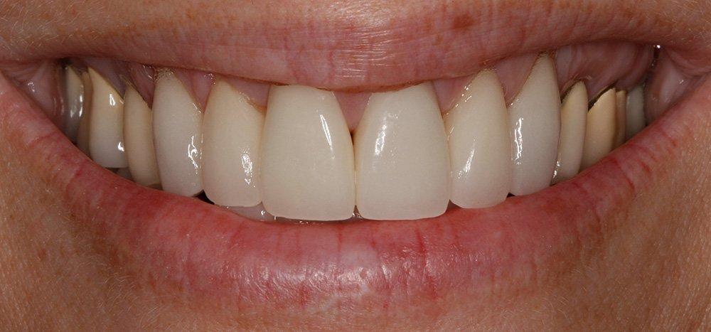 Smiles Design 6-11 After